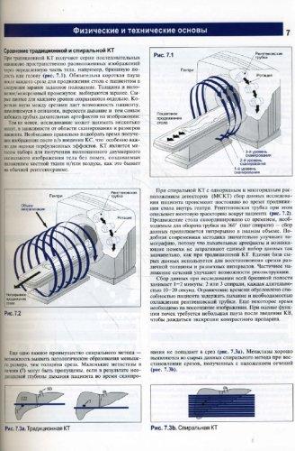 Иллюстрация 1 из 14 для Компьютерная томография. Базовое руководство - Матиас Хофер | Лабиринт - книги. Источник: Лабиринт