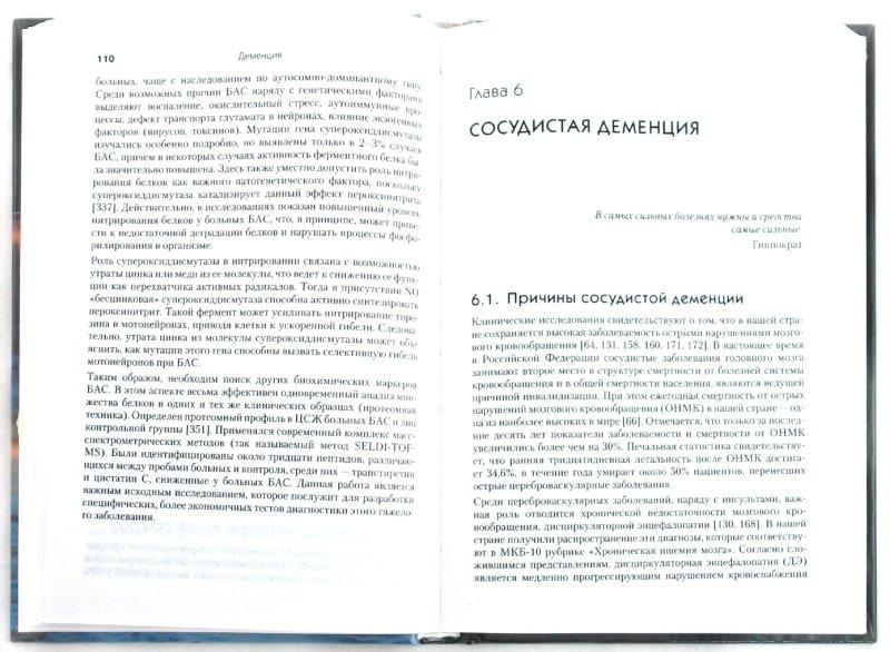 Иллюстрация 1 из 13 для Деменция. Диагностика и лечение - Мария Чухловина   Лабиринт - книги. Источник: Лабиринт
