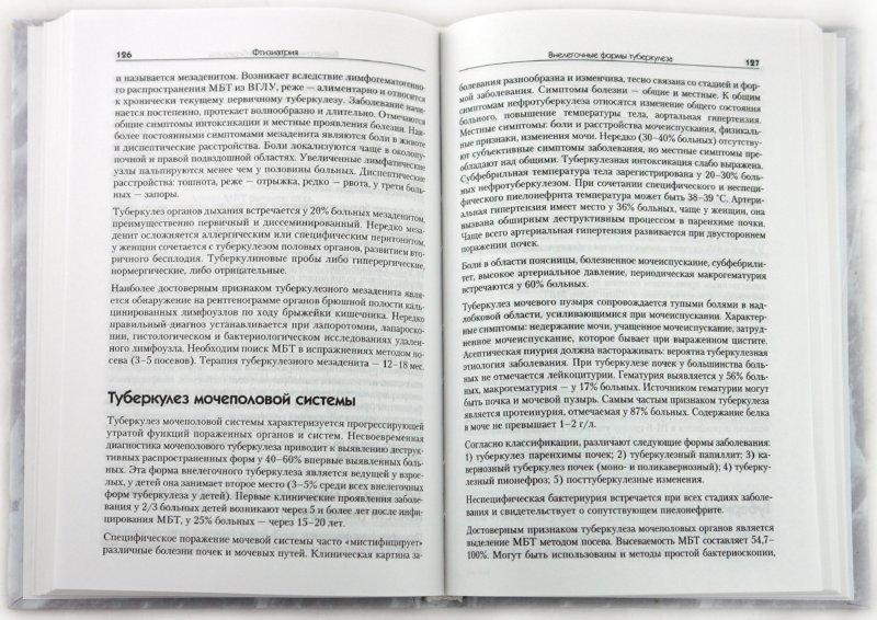 Иллюстрация 1 из 14 для Фтизиатрия. Справочник (+CD) - Король, Лозовская, Пак | Лабиринт - книги. Источник: Лабиринт