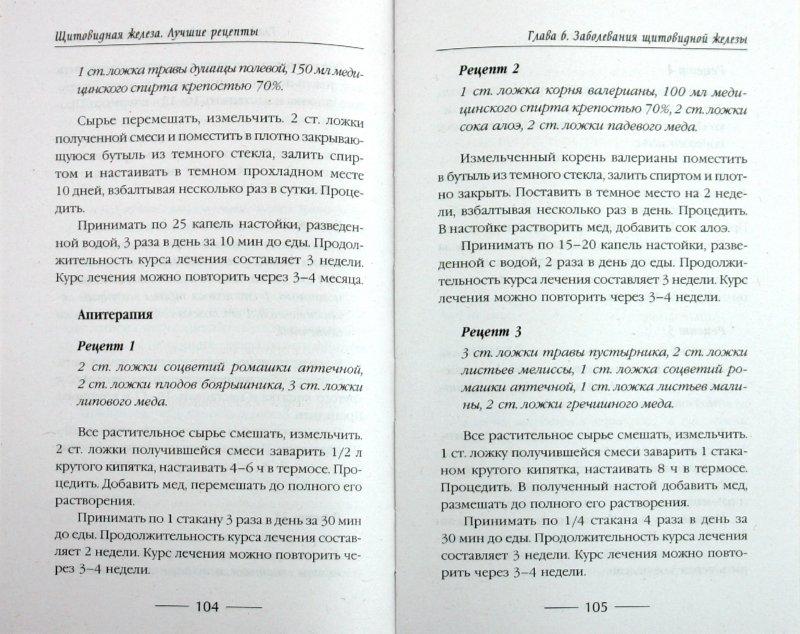 Иллюстрация 1 из 5 для Щитовидная железа - Кабков, Кабков, Леванова   Лабиринт - книги. Источник: Лабиринт