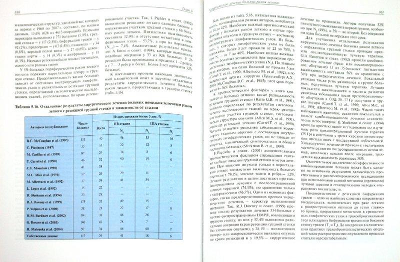 Иллюстрация 1 из 4 для Рак легкого: руководство, атлас - Трахтенберг, Чиссов | Лабиринт - книги. Источник: Лабиринт