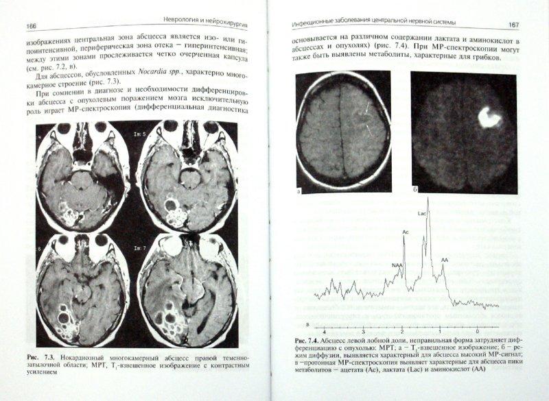 Иллюстрация 1 из 20 для Неврология и нейрохирургия: учебник. В 2-х томах. Том 2 - Коновалов, Гусев, Скворцова | Лабиринт - книги. Источник: Лабиринт