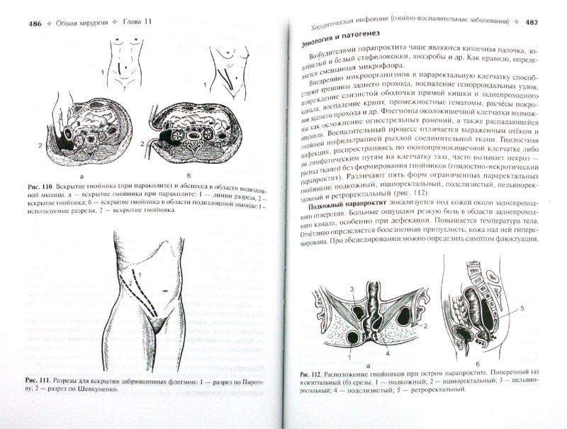 Иллюстрация 1 из 26 для Общая хирургия: учебник. Гостищев В.К. - Виктор Гостищев | Лабиринт - книги. Источник: Лабиринт