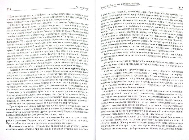 Иллюстрация 1 из 13 для Акушерство. Учебник - Савельева, Шалина, Сичинава, Панина, Курцер | Лабиринт - книги. Источник: Лабиринт