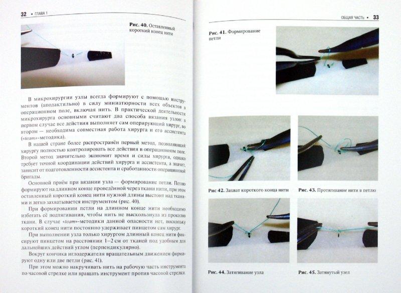 Иллюстрация 1 из 14 для Основы микрохирургии - Геворков, Мартиросян, Дыдыкин, Элиава | Лабиринт - книги. Источник: Лабиринт