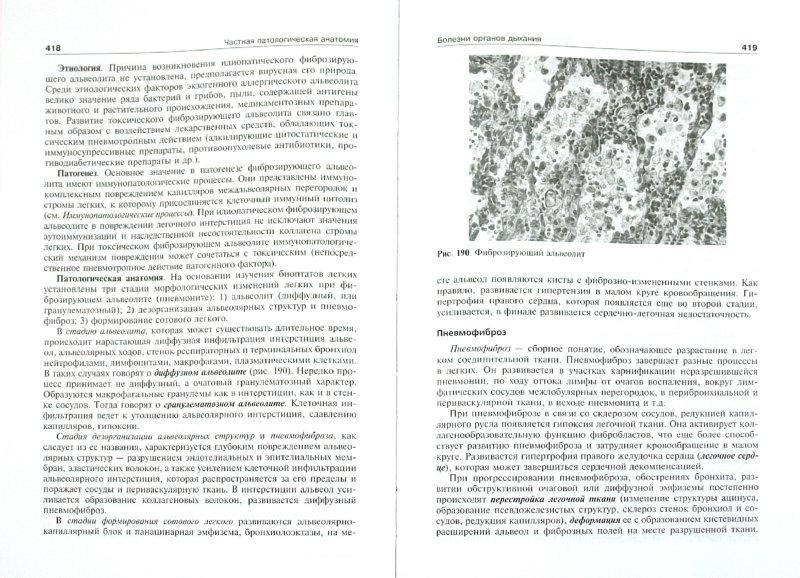 Иллюстрация 1 из 3 для Патологическая анатомия - Струков, Серов   Лабиринт - книги. Источник: Лабиринт