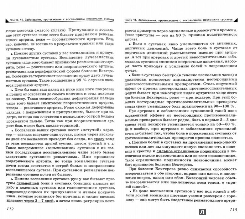 Иллюстрация 1 из 11 для Боль и онемение в руках. Что нужно знать о своем заболевании - Павел Евдокименко | Лабиринт - книги. Источник: Лабиринт