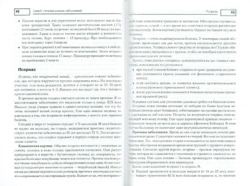 Иллюстрация 1 из 7 для Кожные заболевания - Даховский, Стогова | Лабиринт - книги. Источник: Лабиринт