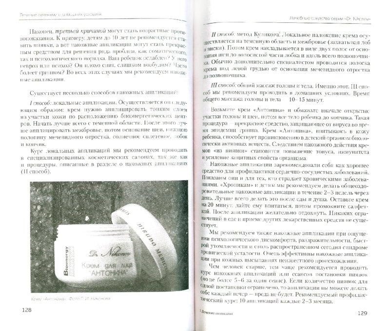 Иллюстрация 1 из 6 для Лечение пиявками - Геращенко, Никонов | Лабиринт - книги. Источник: Лабиринт