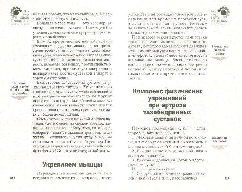 Иллюстрация 1 из 16 для Артроз, артрит. Лечение и профилактика   Лабиринт - книги. Источник: Лабиринт
