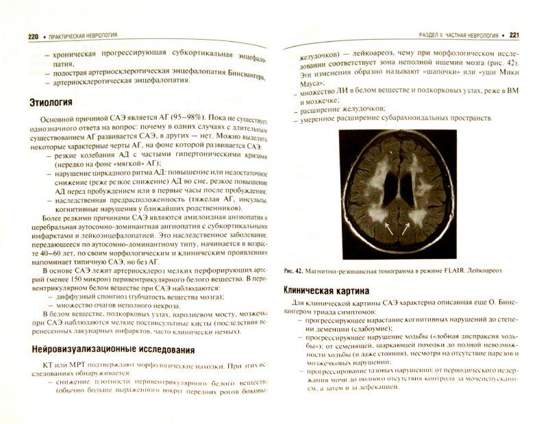 Иллюстрация 1 из 16 для Практическая неврология. Руководство для врачей - Кадыков, Манвелов, Шведков, Алексеева | Лабиринт - книги. Источник: Лабиринт