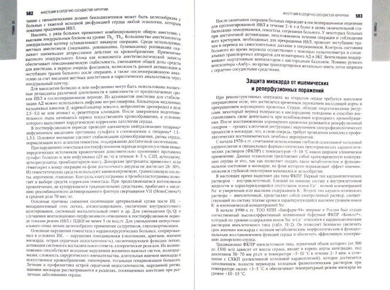 Иллюстрация 1 из 31 для Анестезиология: национальное руководство (+CD) - Бунятян, Мизиков, Бабалян | Лабиринт - книги. Источник: Лабиринт