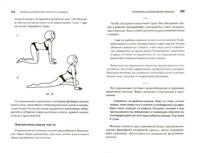 lechebnaya-fizkultura-pri-analnom-nederzhanii