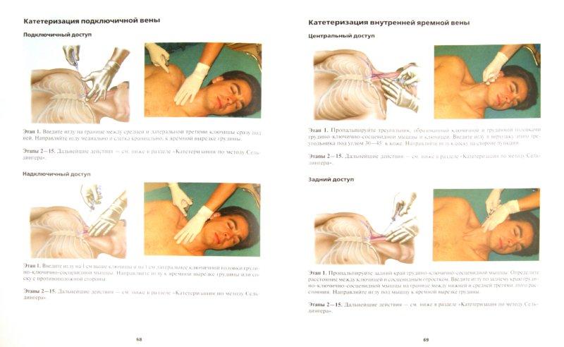 Иллюстрация 1 из 4 для Неотложные врачебные манипуляции. Цветной атлас - Кэтрин Кусталоу   Лабиринт - книги. Источник: Лабиринт