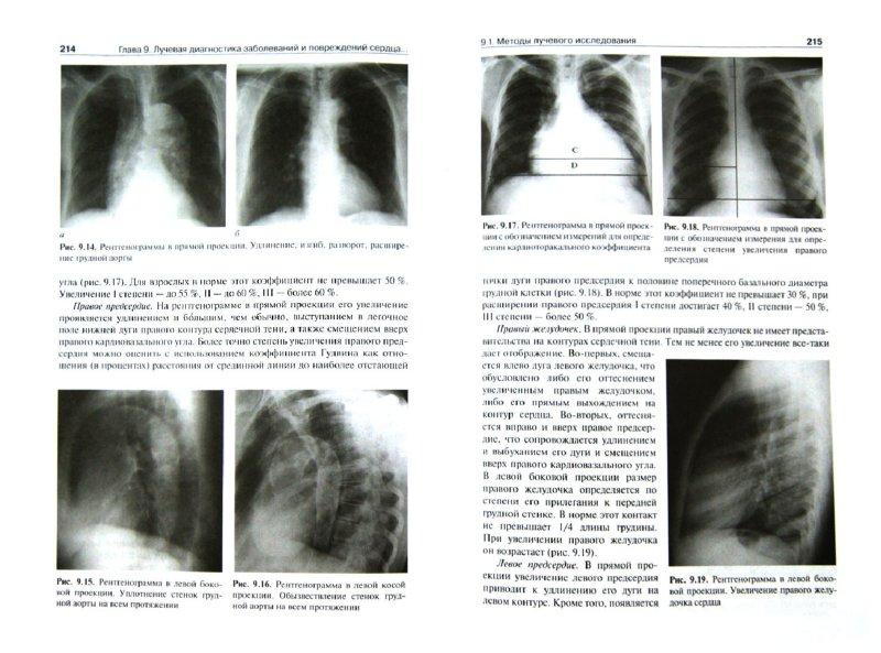 Ренгенологическая диагностика