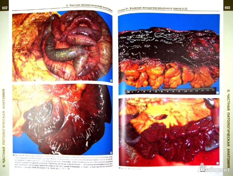 Иллюстрация 1 из 21 для Патологическая анатомия. Атлас. Учебное пособие - Зайратьянц, Бойкова, Зотова   Лабиринт - книги. Источник: Лабиринт