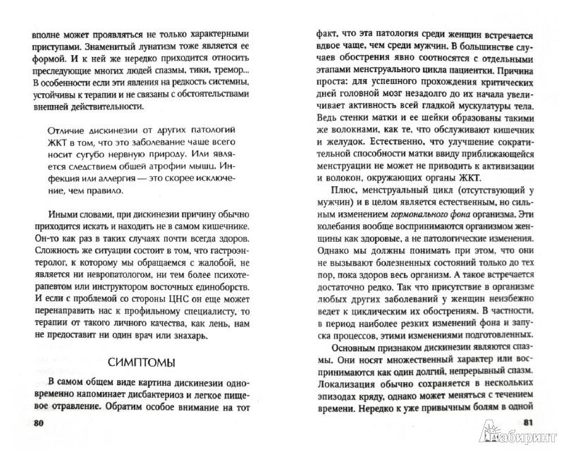 Иллюстрация 1 из 16 для Болезни кишечника. Диагностика, лечение, профилактика - И. Малышева | Лабиринт - книги. Источник: Лабиринт