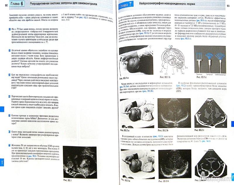 Иллюстрация 1 из 7 для Ультразвуковая диагностика. Базовый курс - Матиас Хофер   Лабиринт - книги. Источник: Лабиринт