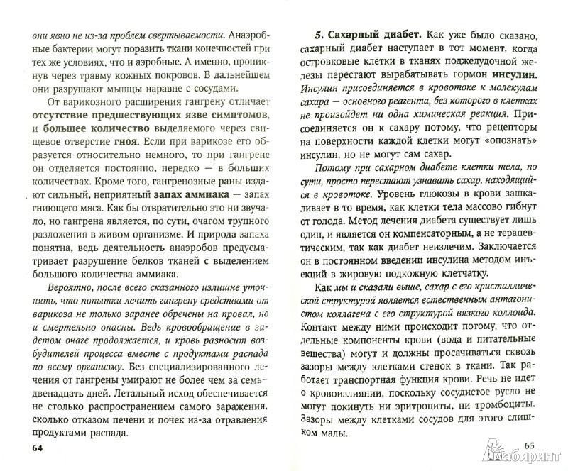 Иллюстрация 1 из 6 для Best. Самое важное о варикозе - И. Малышева | Лабиринт - книги. Источник: Лабиринт