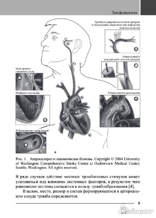 Иллюстрация 1 из 12 для Антитромботическая терапия в профилактике ишемического инсульта - Беккер, Спенсер   Лабиринт - книги. Источник: Лабиринт