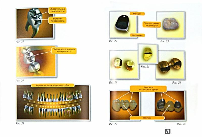 Иллюстрация 1 из 5 для АНТИстоматология: что скрывает от вас ваш стоматолог? - Артур Пинхасов | Лабиринт - книги. Источник: Лабиринт
