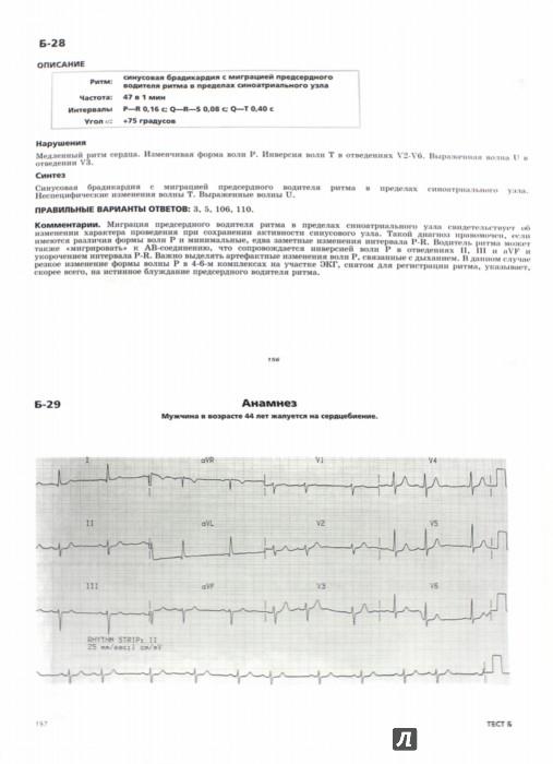 Иллюстрация 1 из 14 для Клиническая электрокардиография - Франклин Циммерман | Лабиринт - книги. Источник: Лабиринт