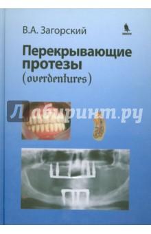 Перекрывающие протезы (overdentures)Стоматология<br>В руководстве изложены современные представления о взаимоотношении зубов, их корней, установленных имплантатов и тканей протезного ложа при применении перекрывающих конструкций съемных протезов. Даны биомеханические характеристики, приведена оценка функционирования их при физиологических и аномальных нагрузках, обобщен опыт использования одиночных зубов, их корней, установленных имплантатов, разработаны показания к их применению с учетом состояния тканей протезного ложа в различных клинических ситуациях. Особое внимание уделено выбору тактики изготовления перекрывающих протезов в сложных клинических ситуациях.<br>Для стоматологов всех профилей, преподавателей стоматологических факультетов.<br>