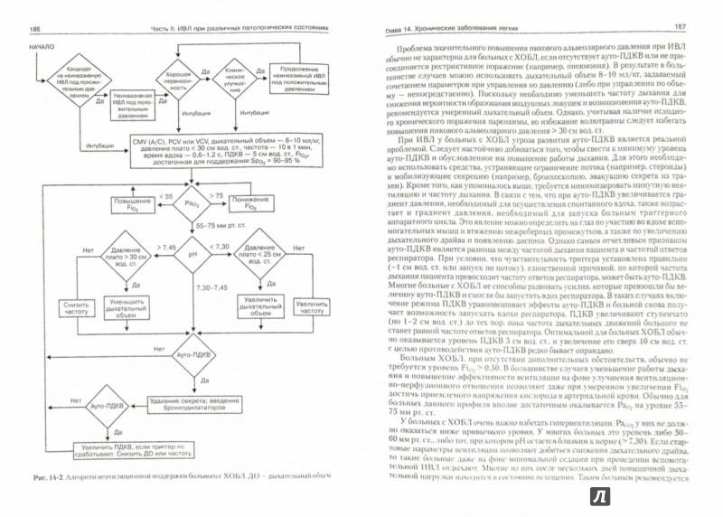Иллюстрация 1 из 13 для Искусственная вентиляция легких - Гесс, Качмарек   Лабиринт - книги. Источник: Лабиринт