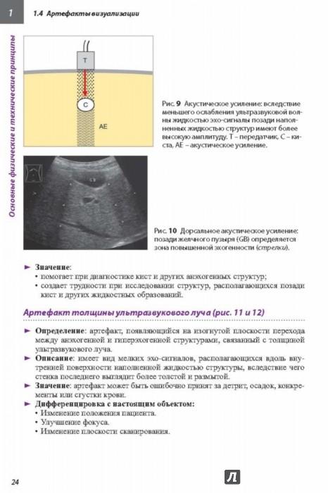скачать ультразвуковая диагностика шмидт г практическое руководство - фото 2