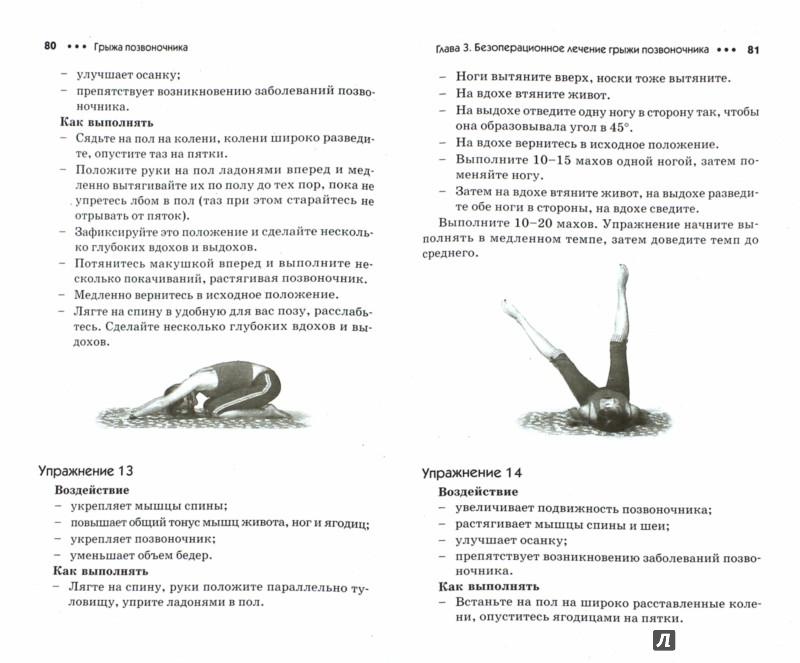 Иллюстрация 1 из 6 для Грыжа позвоночника. Лечение и профилактика - Алексей Садов | Лабиринт - книги. Источник: Лабиринт
