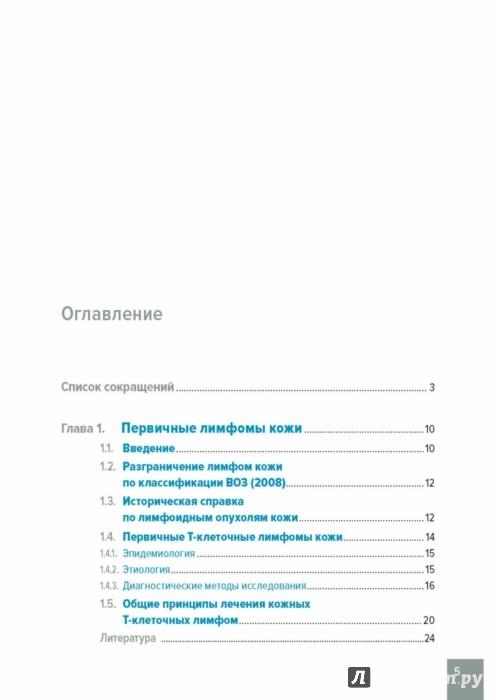 Иллюстрация 1 из 15 для Лимфомы кожи. Диагностика и лечение - Потекаев, Виноградова, Виноградов   Лабиринт - книги. Источник: Лабиринт