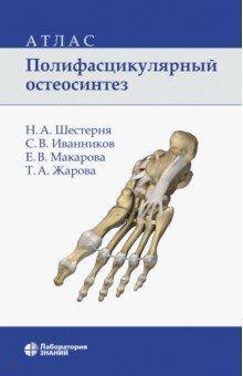Полифасцикулярный остеосинтез. АтласХирургия. Ортопедия<br>В атласе представлена система полифасцикулярного остеосинтеза, подробно изложена методика установки блоков при переломах костей верхней и нижней конечностей. Продемонстрированы результаты лечения больных. <br>Для травматологов-ортопедов, а также студентов старших курсов медицинских вузов.<br>