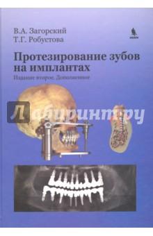 Протезирование зубов на имплантатахСтоматология<br>Основываясь на данных литературы и результатах собственных клинических и биомеханических исследований, авторы предлагают свою точку зрения на биомеханику твердых тканей зуба, компактной и губчатой костной ткани челюстей и черепа, а также различных конструкций имплантатов. С помощью методов конечных элементов проанализирована механика зубов, имплантатов и костной ткани при различных клинических состояниях. Обосновано применение функциональной нагрузки при изготовлении зубных протезов с опорой на имплантаты. Даны рекомендации по конструированию отдельных зубов, групп зубов и зубных рядов в межчелюстном пространстве с опорой на имплантаты в конкретных клинических условиях. Особое внимание уделено выбору тактики лечения в сложных клинических ситуациях.<br>Для специалистов по зубной имплантации, стоматологов всех профилей, преподавателей стоматологических факультетов высших медицинских учебных заведений.<br>2-е издание, дополненное.<br>