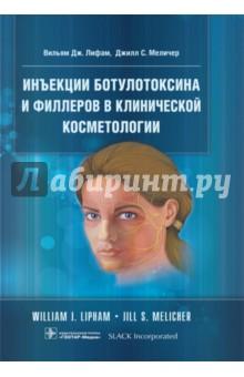 Инъекции ботулотоксина и филлеров в клинической косметологииКожные и венерические болезни<br>В книге рассмотрены различные области применения ботулинического токсина - нейроофтальмология и косметология, лечение блефароспазма, синдрома Мейжа, гемифациального спазма, функциональных расстройств и др. Описан широкий спектр процедур с разнообразными кожными наполнителями - филлерами, в том числе на основе гиалуроновой кислоты и производных L-полимолочной кислоты. Приведены коммерчески доступные продукты ботулинического токсина, основное оборудование и материалы, даны рекомендации и советы по его клиническому применению. Рассмотрены противопоказания и меры предосторожности, а также побочные реакции.<br>В отдельной главе изложена анатомия мышц лица.<br>Издание будет полезно для пластических хирургов, офтальмологов, косметологов.<br>