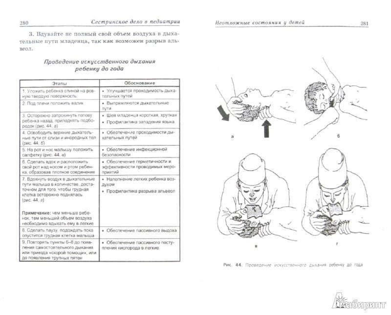 Заполнение Карты Сестринского Процесса По Педиатрии