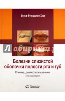 Болезни слизистой оболочки полости рта и губ. Клиника, диагностика и лечение - Борк, Бургдорф, Хеде