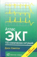 Атлас ЭКГ. 150 клинических ситуаций