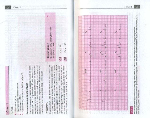 Иллюстрация 1 из 43 для Атлас ЭКГ. 150 клинических ситуаций - Джон Хэмптон | Лабиринт - книги. Источник: Лабиринт