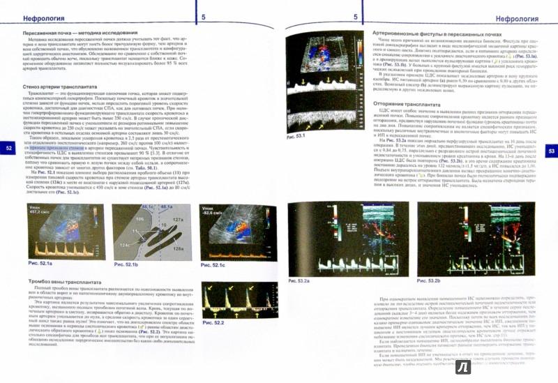 Иллюстрация 1 из 45 для Цветовая дуплексная сонография. Практическое руководство - Матиас Хофер | Лабиринт - книги. Источник: Лабиринт