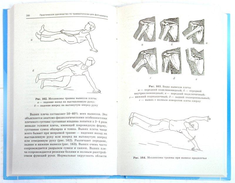 Иллюстрация 1 из 6 для Практическое руководство по травматологии для фельдшеров - Барыкина, Кабарухин | Лабиринт - книги. Источник: Лабиринт