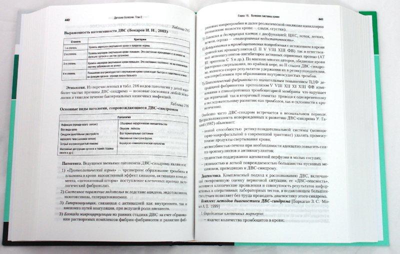 Иллюстрация 1 из 11 для Детские болезни: Учебник для вузов. В двух томах. Том 2 - Николай Шабалов | Лабиринт - книги. Источник: Лабиринт