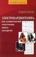 Электрокардиограмма при асимметричной гипертрофии левого желудочка