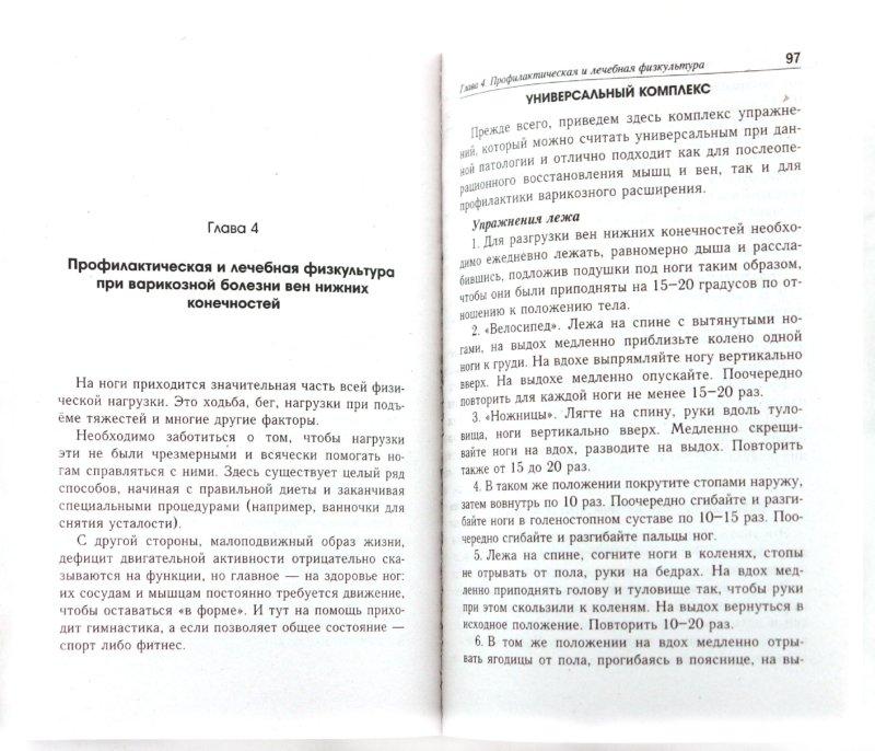 Иллюстрация 1 из 12 для Варикозная болезнь: советы и рекомендации по лечению и профилактике - Петр Ситников | Лабиринт - книги. Источник: Лабиринт