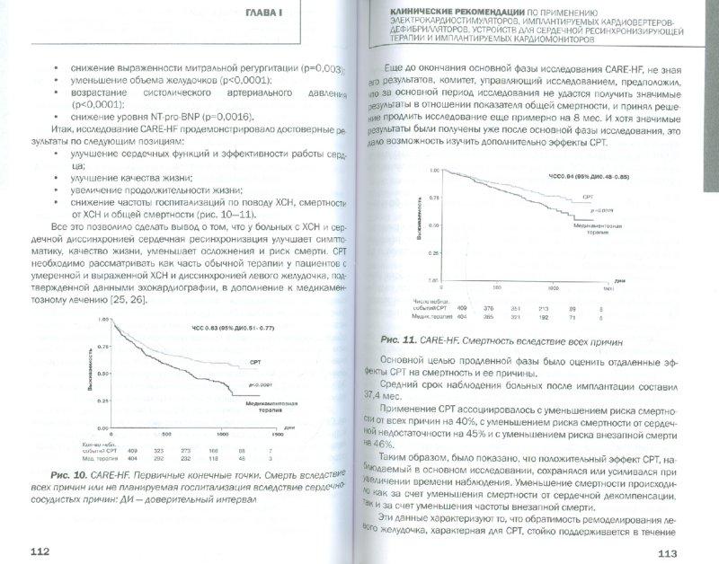 Иллюстрация 1 из 8 для Аритмология: клинические рекомендации по проведению электрофизиологических исследований... - А. Ревишвили | Лабиринт - книги. Источник: Лабиринт