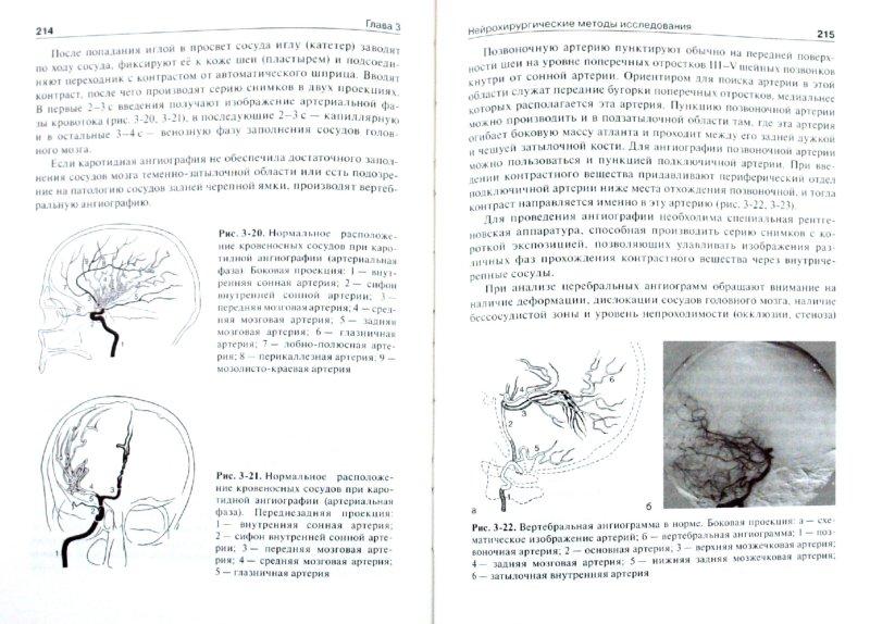Иллюстрация 1 из 16 для Нейрохирургия - Можаев, Скоромец, Скоромец | Лабиринт - книги. Источник: Лабиринт