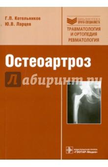Остеоартроз: руководство