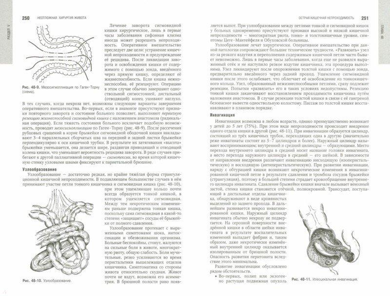 Иллюстрация 1 из 59 для Клиническая хирургия. Национальное руководство. В 3-х томах. Том 2 (+CD) | Лабиринт - книги. Источник: Лабиринт