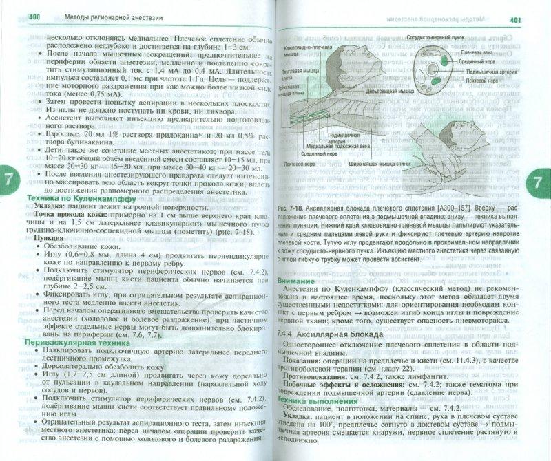 Иллюстрация 1 из 9 для Анестезиология - Шефер, Эберхардт | Лабиринт - книги. Источник: Лабиринт