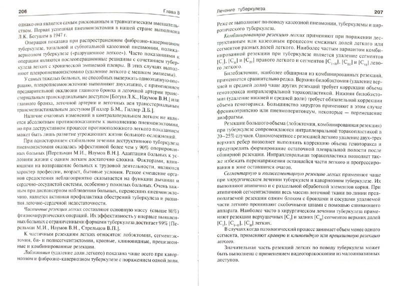 Иллюстрация 1 из 31 для Фтизиопульмонология - Мишин, Григорьев, Митронин, Завражной | Лабиринт - книги. Источник: Лабиринт