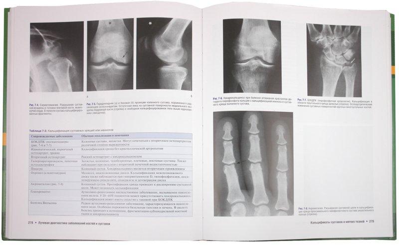 Лучевая анатомия костей и суставов суставы болят после бани